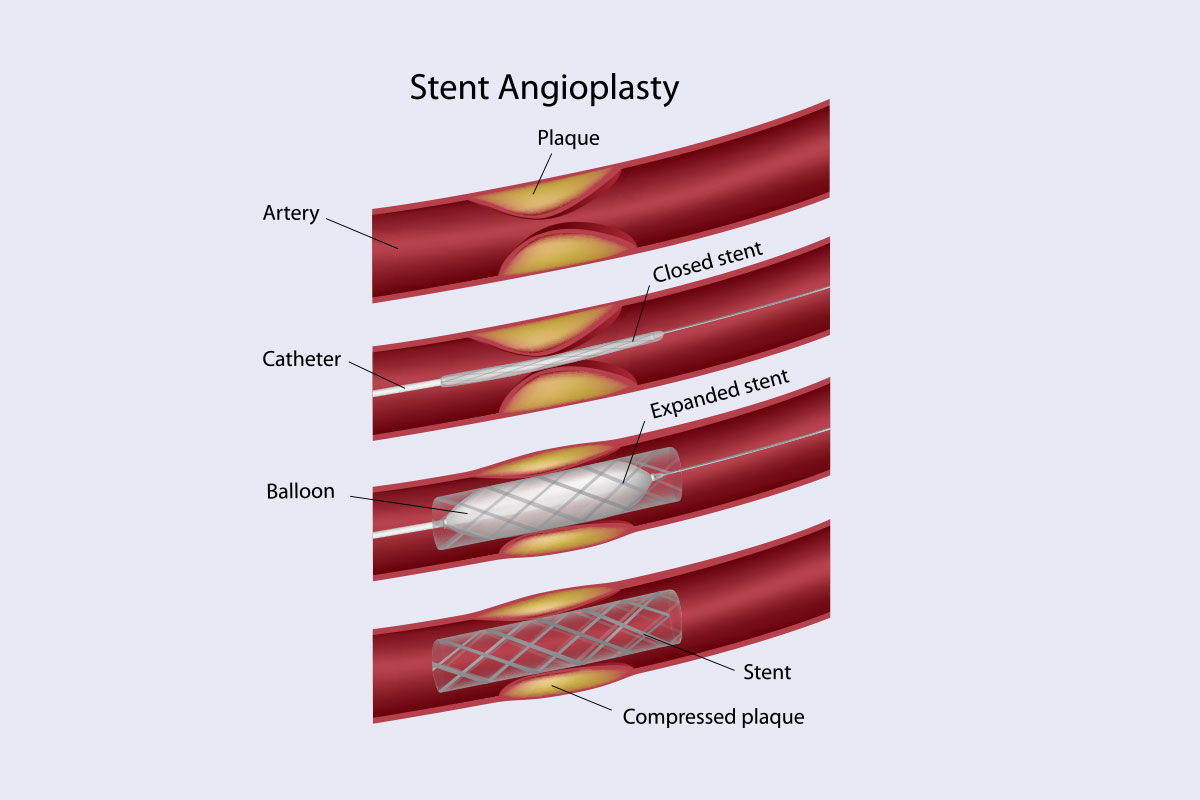illustration of Stent Angioplasty