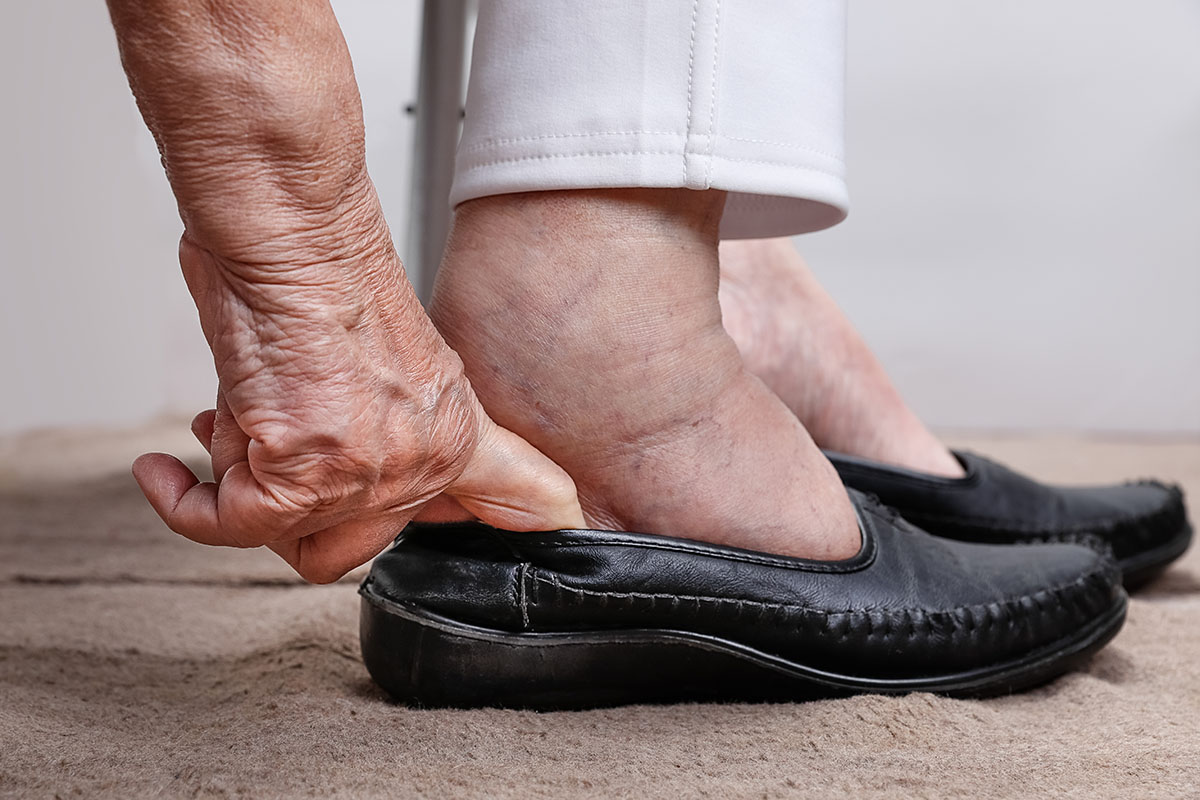 elderly woman with swollen feet putting on shoes