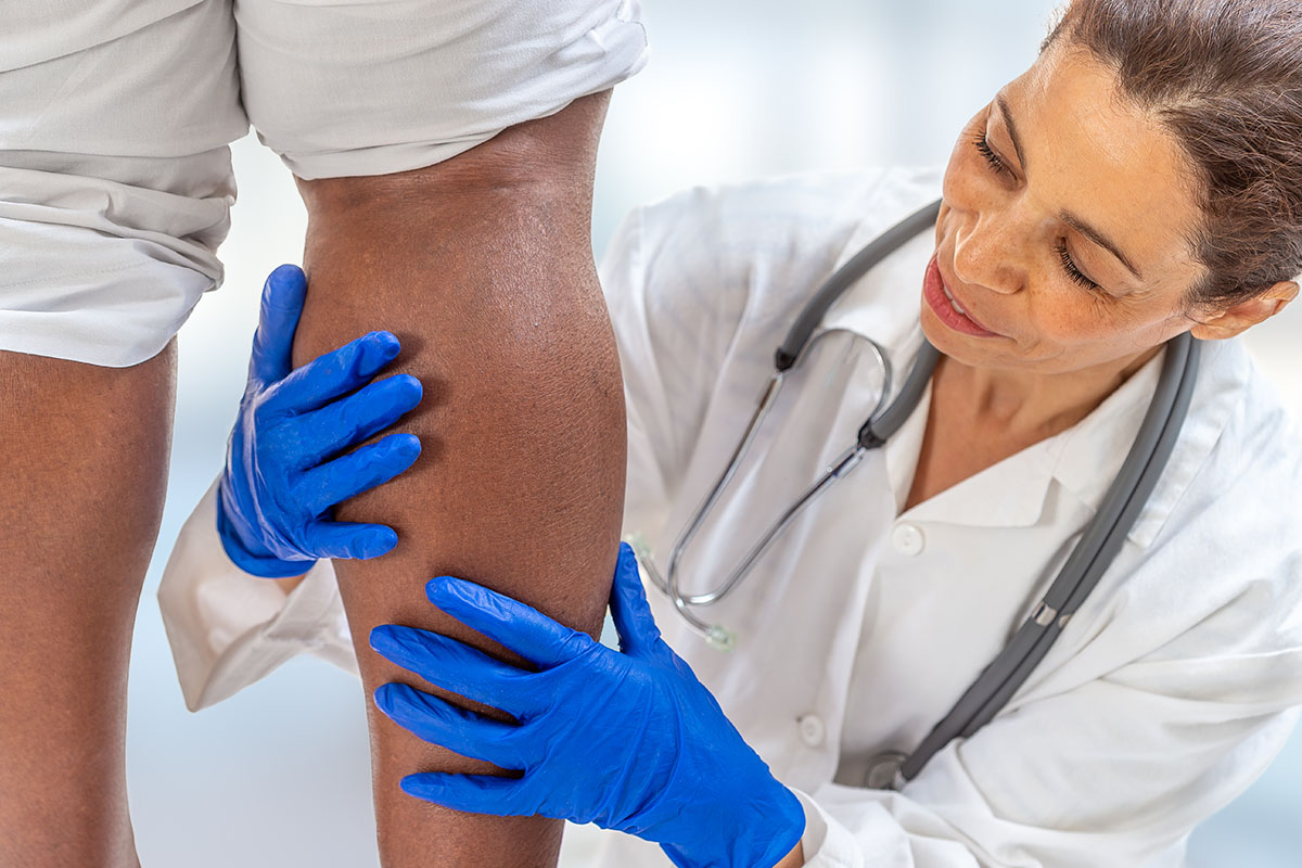 phlebologist inspecting a woman's leg looking for varicose veins